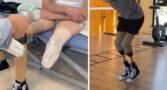 VYTRUVE_prothèses3D